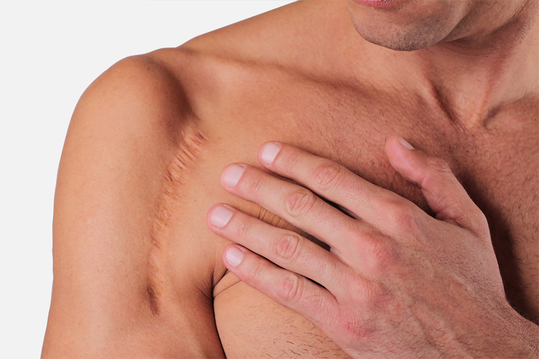 regenacyn advanced scar management gel